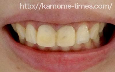 仮歯を入れた前歯