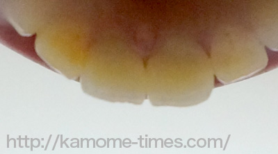 前歯セラミック裏側
